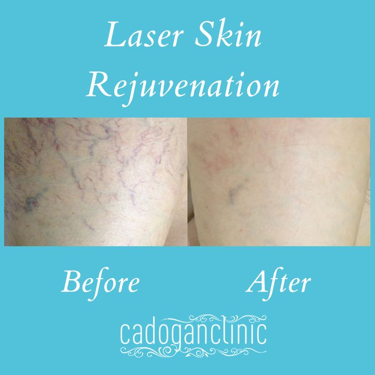 Laser Hair Rejuvenation - Refresh your skin with our amazing laser skin treatments. Targeting pigmentation, fine lines and wrinkles, vascular and skin rejuvenation, these treatments will reveal a smoother, tighter and brighter complexion so that you're selfie confident. #skin #skincare #beauty #laser #lasertreatments #bbloggers #lifestyle #pigmentation #cosmeticsurgery - www.cadoganclinic.com