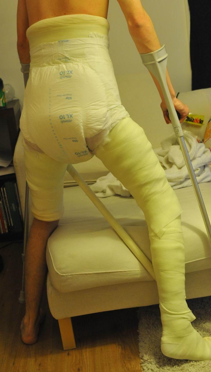 12 best ��� images on pinterest full body cast leg