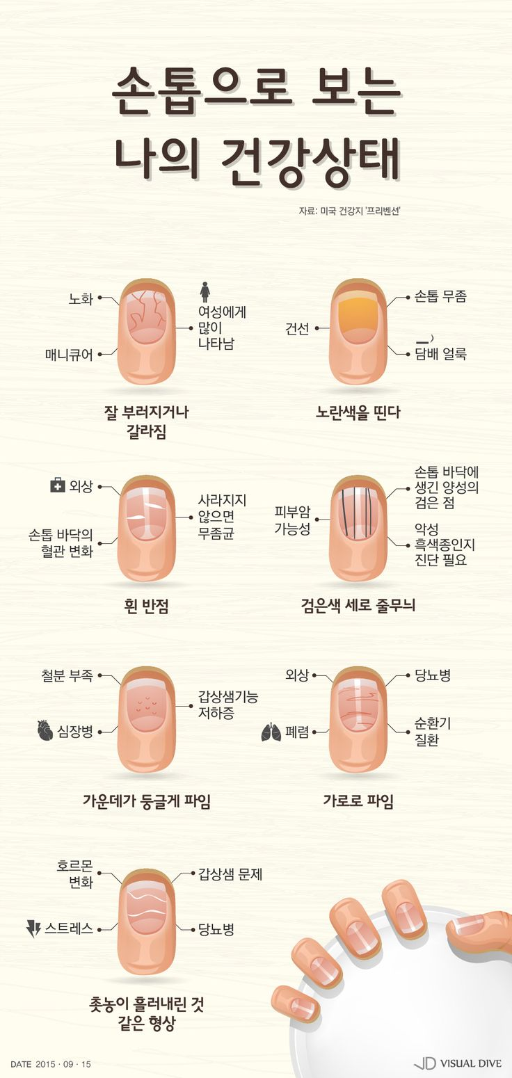 손톱으로 보는 나의 건강상태는? [인포그래픽] #Nail / #Infographic ⓒ 비주얼다이브 무단 복사·전재·재배포 금지