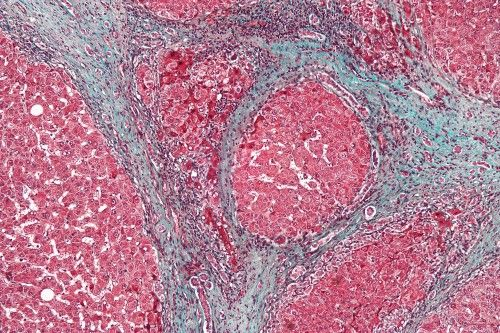 The new test can detect liver scarring before conditions such as cirrhosis emerge. Photo: Wikimedia Commons