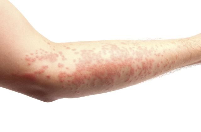 Red, Itchy Rash: Do I Have Hives?