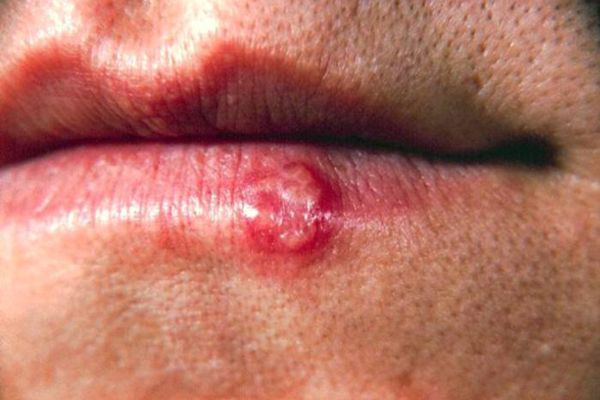 A cold sore on this patient%u2019s lip was caused by the herpes simplex virus type 1 (HSV-1).