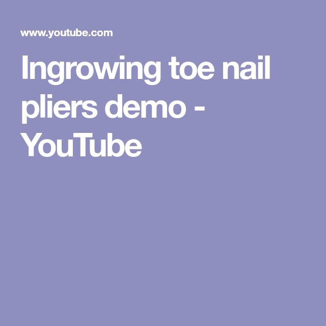 Ingrowing toe nail pliers demo - YouTube