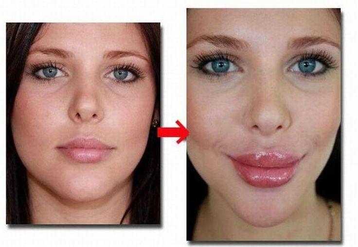 BEST Bigger Lips Plumper Filler Enlargement Enlarger Augmentation Pump Machine
