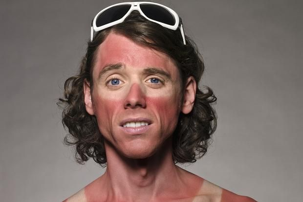 sunburnt face - Google Search