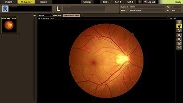 Eye Care - Eye Care - Canon Europe