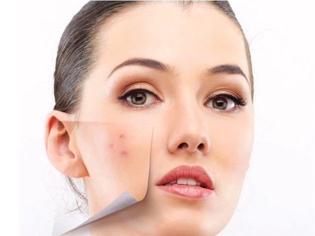 """NEWS: la micro e dermoabrasione per cancellare i segni dell'acne""""Quando il vostro viso presenta segni o cicatrici lasciate da un'acne particolarmente aggressiva oppure avete delle antiestetiche macchie scure o un' ispessimento della pelle è possibile affidarci alla microdermoabrasione e alla dermoabrasione che in alcuni casi vengono affiancati da altre procedure a discrezione del giudizio del Dottore. Questi due trattamenti se fatti da personale esperto e accreditato danno ottimi…"""
