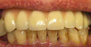 domáca metóda bielenia zubov