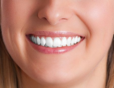 Laser Whitening For A Shining Smile       Laser whitening is one of the newest teeth whitening treatments. It is performed by a dentist i...