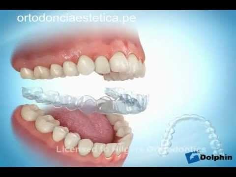 Ortodoncia sin Brackets   Ortodoncia con ferulas