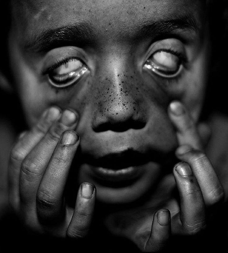 Goggle Eyes. #chieskafortunesmith