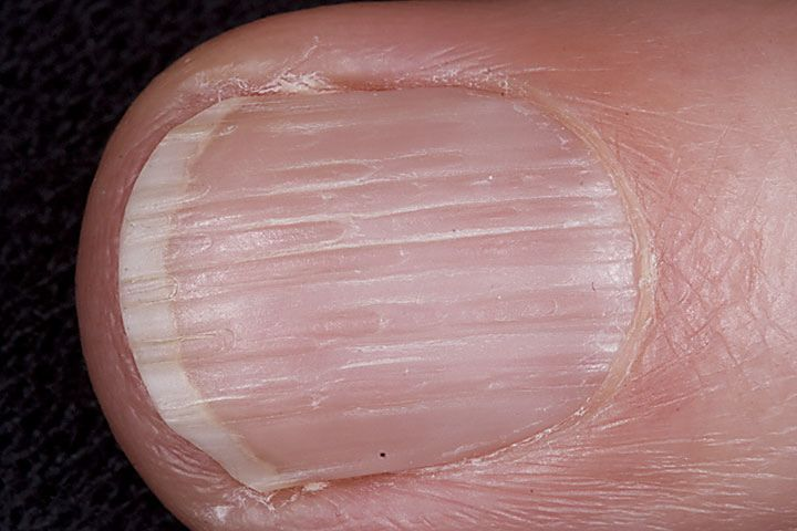 The 9 best DamagedNail images on Pinterest   Pitted nails ...