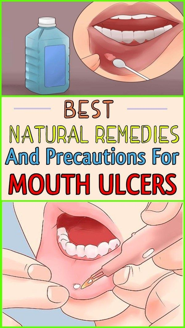 The Best Natural Remedies And Precautions For Mouth Ulcers Mouth