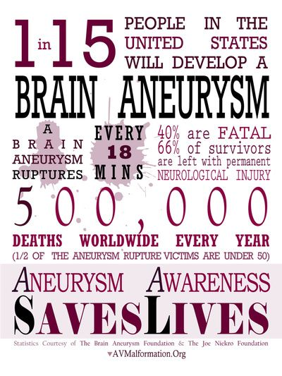 Brain Aneurysm Awareness Infographic Art Print