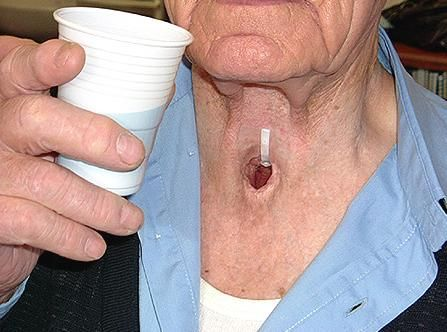 Symptoms of Throat Cancer