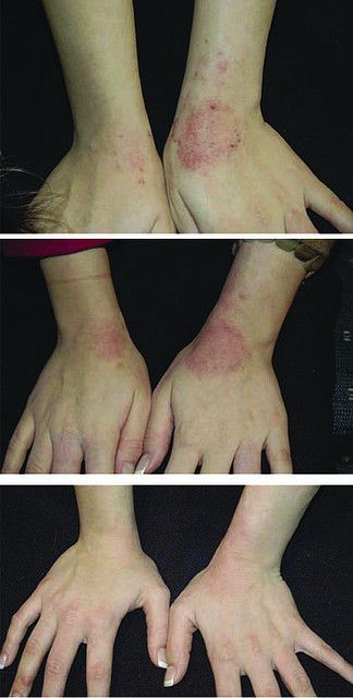 Arbonne Before and After - Great results for Eczema and psoriasis sufferers using our ABC Baby Range.