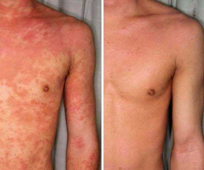 eczema before and after - CLICK FOR REVITOL ECZEMA CREAM ...