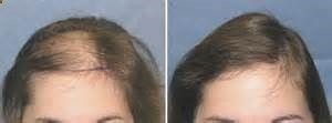 women hair loss before and after - Provillus natural hair regrowth solutions treat thinning hair. Contains minoxidil 5% which cures alopecia areata, androgenic, pattern baldness. Provillus Natural Hair Growth Treatment, Minoxidil 5% For Alopecia Hair Loss