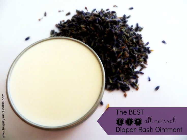 How to Make The Best All Natural Diaper Rash (and Topical Yeast Infection) Treatment Ointment at Home