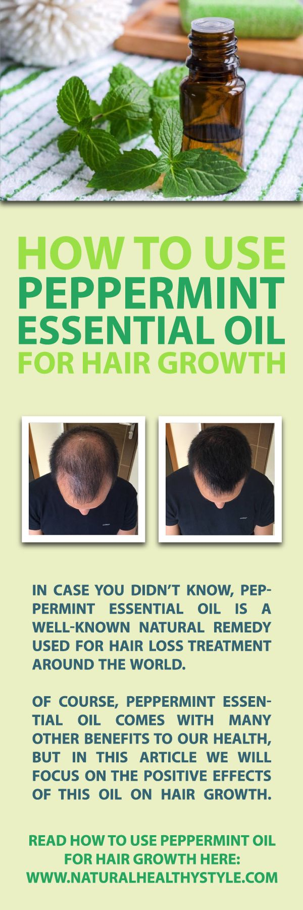 In case you didn't know, peppermint essential oil is a well-known natural remedy used for hair loss treatment around the world. Many people are convinced that it supports hair growth by boosting blood circulation in the area where so-called follicular ski