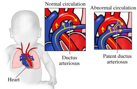 patent ductous arteriousis