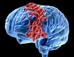Obat Kanker Otak Yang Dijual Di Apotik