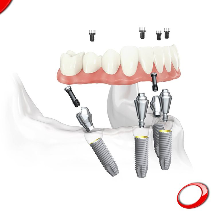 Com apenas 4 implantes podemos devolver a vida ao seu Sorriso, sabia? Com a técnica ALL-ON-4! www.pnid.pt
