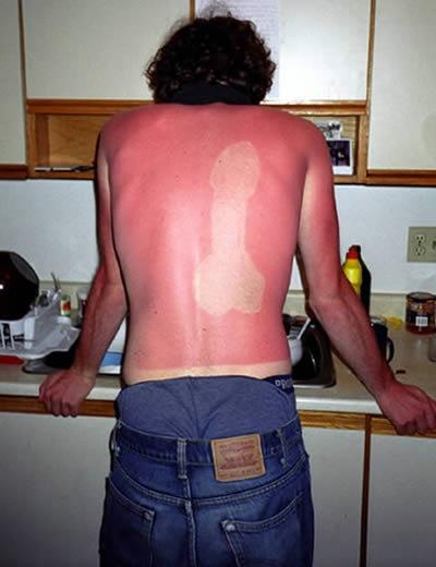 worst sunburn ever.....and worst friends
