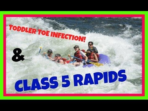 EXTREME CLASS 5 RAFTING & TODDLER INFECTED TOE  (DAY 529)