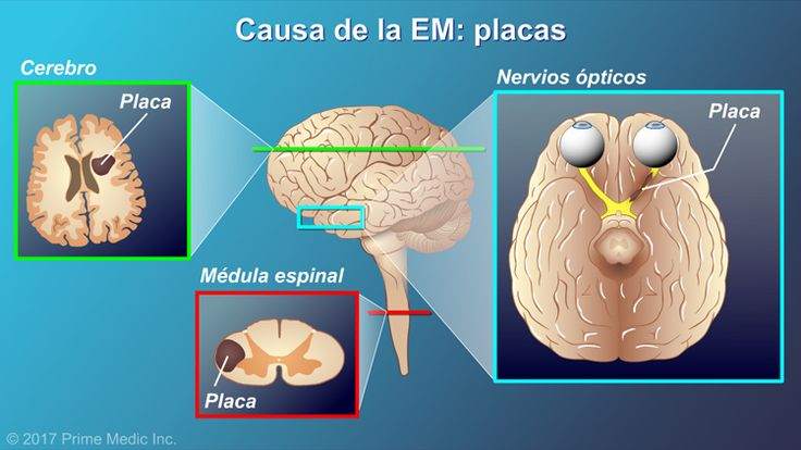"""Esas lesiones se endurecen y forman un tejido cicatricial que recibe el nombre de """"placas"""".slide show: explicación de la esclerosis múltiple. en esta presentación de diapositivas se describen las causas, los síntomas comunes y la naturaleza de la esclerosis múltiple, así como distintos tipos de farmacoterapias utilizadas para el tratamiento de la enfermedad."""