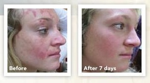 Miracle Tissue oil Results after just 7 days!! Don't wait, get your very own Annique Miracle Tissue Oil NOW http://anniqueonline.co.za/node/102