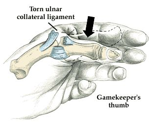 Other arm injuries include shoulder dislocations, gamekeeper's thumb, and fractures of the hand and wrist.