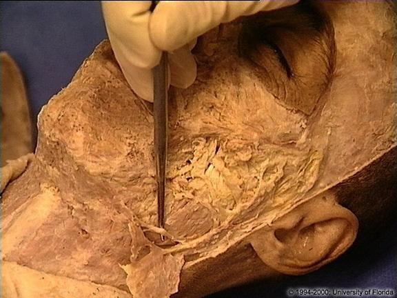 Mejores 66 imágenes de Head and Neck Anatomy en Pinterest | Anatomía ...