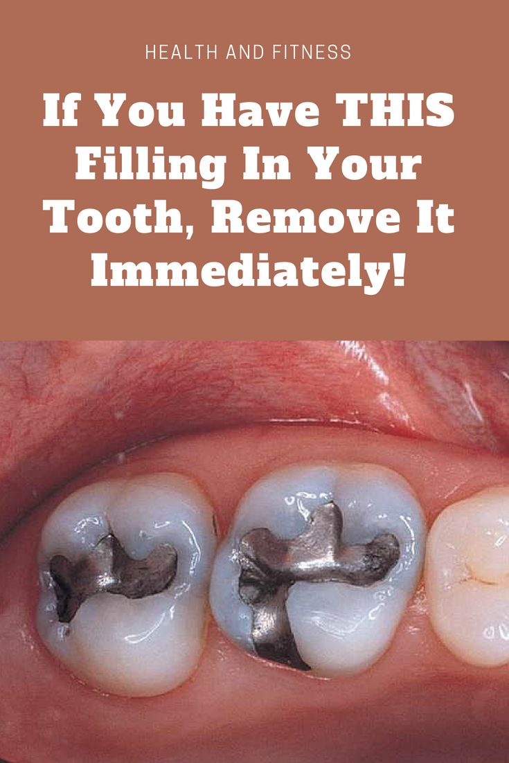 94be085a185eebc6f6423421a9d9a5a2 - How To Get Rid Of Tooth Pain After A Filling