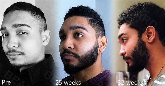 The Guide to Growing Your Beard with Minoxidil - Beard Profile