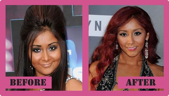 snooki plastic surgery before and after snooki plastic