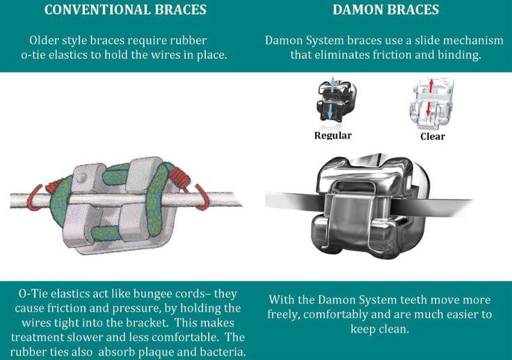damon braces - Google Search