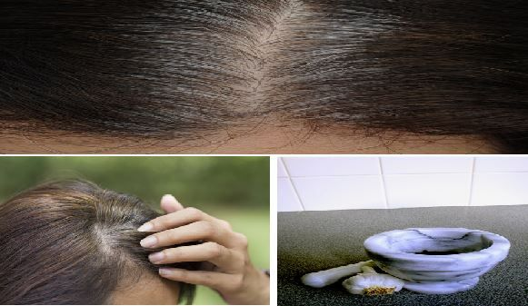 It's Only Takes 5 Minutes to Eliminate White Hair, Regrow Hair and Prevent Hair Fall