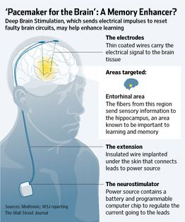 An electrical brain-stimulation technique used to treat Parkinson's disease and chronic pain appears to enhance human memory as well, according to a tiny but intriguing new study that bolsters hope for one day developing a nondrug treatment for memory problems, including ailments like #Alzheimer's disease.