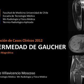 Facultad de Medicina Universidad de Chile Escuela de Tecnología Médica Mn Radiología y Física Médica Técnica Radiológica AplicadaPresentación de Casos Clíni. http://slidehot.com/resources/caso-clinico-enfermedad-de-gaucher.17687/