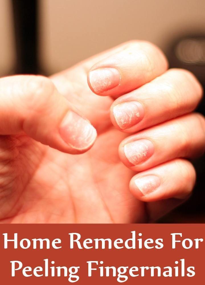 Top 5 Hausmittel zum Peeling Fingernägel – Nails