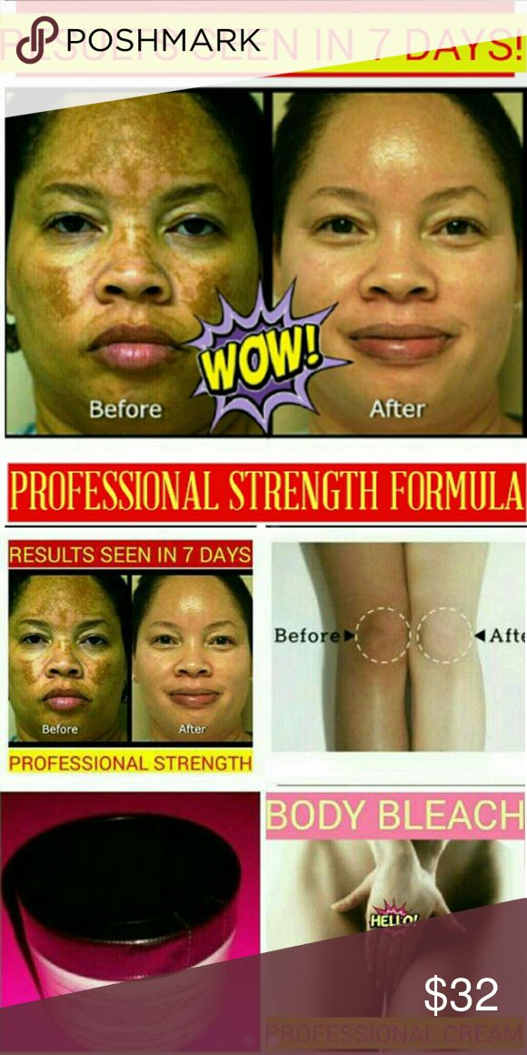 PROFESSIONAL SKIN LIGHTENING CREAM https://www.etsy.com/shop/NEWSKINCARE17  YOU WILL NOT FIND ANOTHER PRODUCT THAT WILL GIVE YOU NOTICEABLE RESULTS. THIS IS NOT A GIMMICK!   2 OZ. JAR.  COMPLETELY LIGHTENS SCARS  FOR FACE AND BODY  High quality + HIGHLY EFFECTIVE skin bleaching.   Lightens:  DARK SPOTS ACNE SCARS DARK INNER THIGH STRETCH MARKS DARK ELBOWS & KNEES MELASMA DARK UNDERARM PRIVATE PARTS DARK CIRCLES   BEGIN TO SEE RESULTS WITHIN 1 WEEK.  GUARANTEED FAST RESULTS. . Makeup