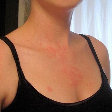 Red Itchy Rash in IgA Nephropathy    http://www.kidney-cares.org/illness-analysis/1534.html