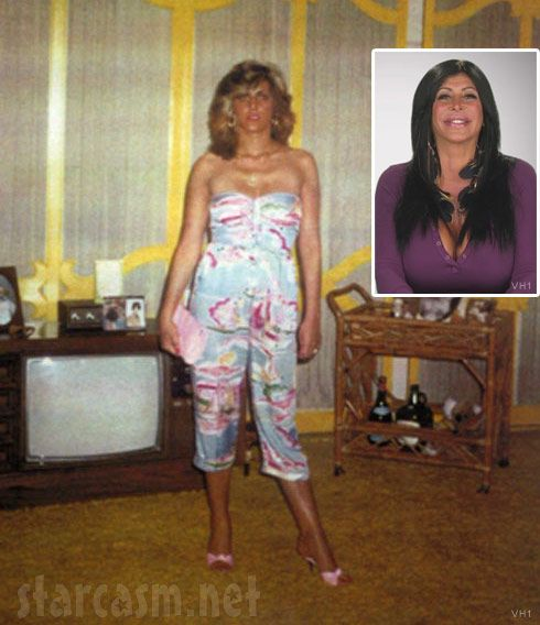 Big Ang before and after plastic surgery