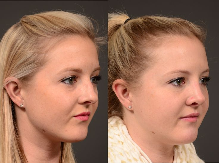 #Rhinoplasty is the focus of our #TransformationTuesday.  The nose is a feature that plays well with the rest of the face, and lets the eyes shine.  The #nose needs to breathe well in addition to looking good.  Our patient is 4 months out from a #septoplasty (correction of deviated nasal septum that can interfere with breathing) and rhinoplasty (to smooth our the nasal bridge and refine the nasal tip).  She looks beautiful and natural--and very much like herself!