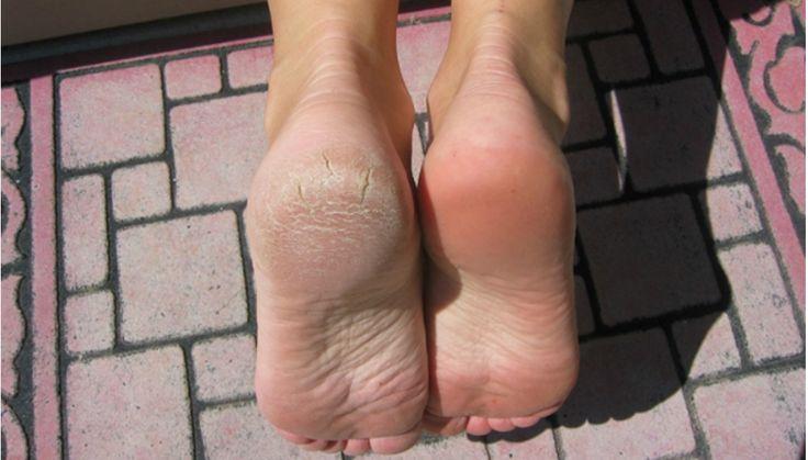 Zhrubělá kůže na patách se vyskytuje velmi často u lidí kteří na to mají buď predispozici nebo nedostatek vitamínů, nepohodlnou obuv, nedostatečnou hygienu či plísňové onemocnění. Pokud se ve správné době neurčí příčina ztluštění kůže a neučiní se nezbytná opatření, kůže začne praskat. Nejen že to