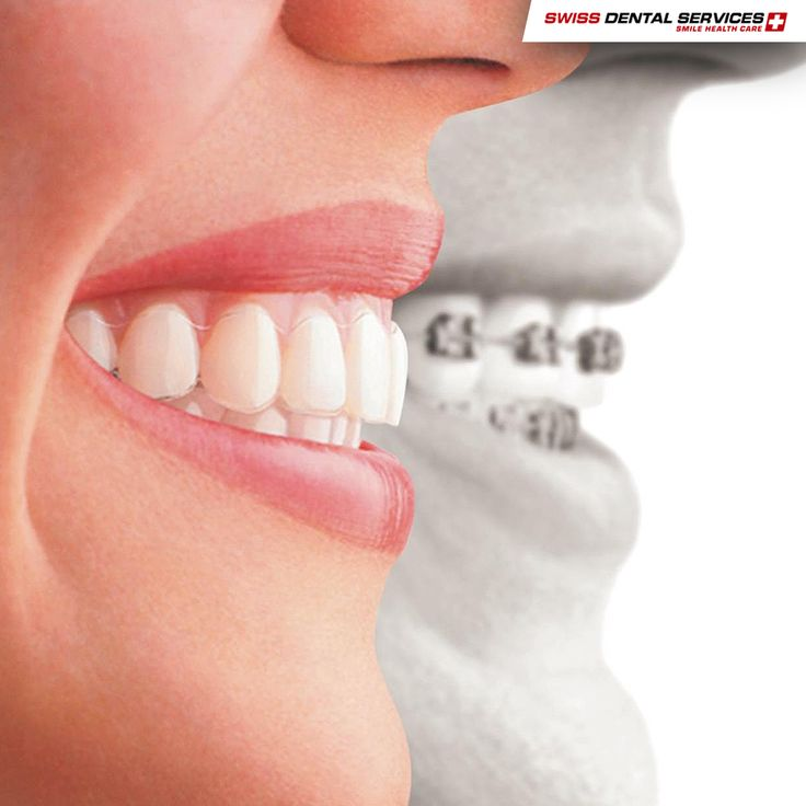 What's Invisalign? Invisalign is an invisible brace which uses sets of made-to measure aligners. These aligners are practically invisible and reposition your teeth so you can get a smile that will make you feel more confident and proud.   -------------------------------------------- www.swissdentalservices.com/en #dentist #implants #smile #clinic #ismile