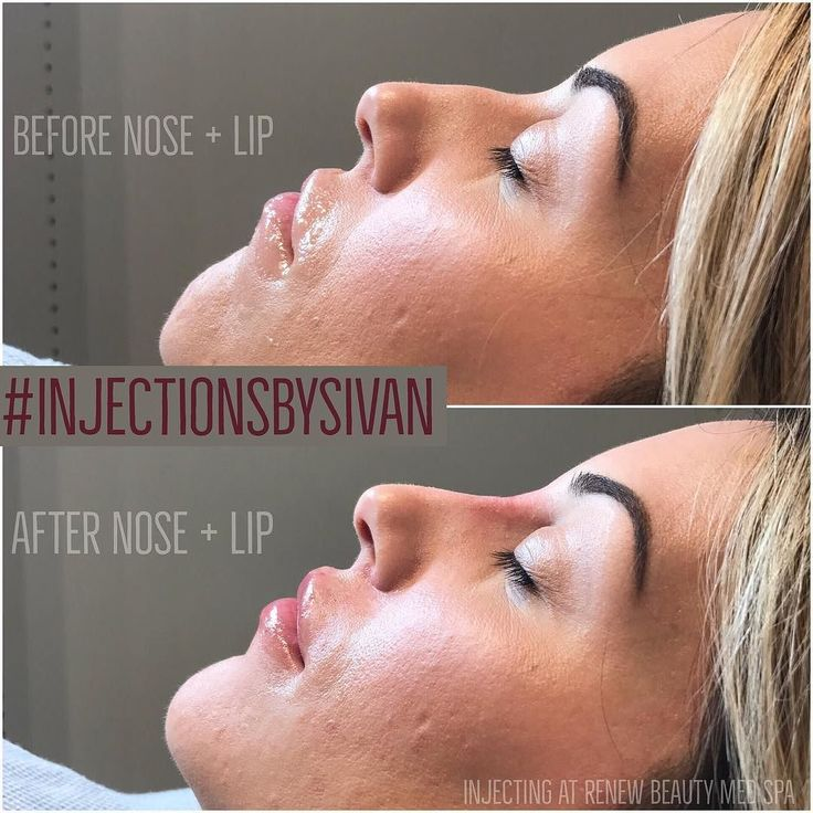 TRANSFORMATION ALERT  Non-surgical nose filler  lip injections.  Book with me on StyleSeat (link in bio) DM me for questions .  2-4 Day recovery time from swelling and bruising. . #northpark . . Touch up your final results once a year .  . #lipsbysivan #lipinjections #juvederm #dallasbotox #botox #lipenhancement #kyliecosmetics #kyliejenner #lips #lipstick #holidayseason #juvedermlips #kardashian #renewbeautydallas #dallasmedspa #dallasbeauty #dfwbeautyguide #lipaugmentation #northpark…