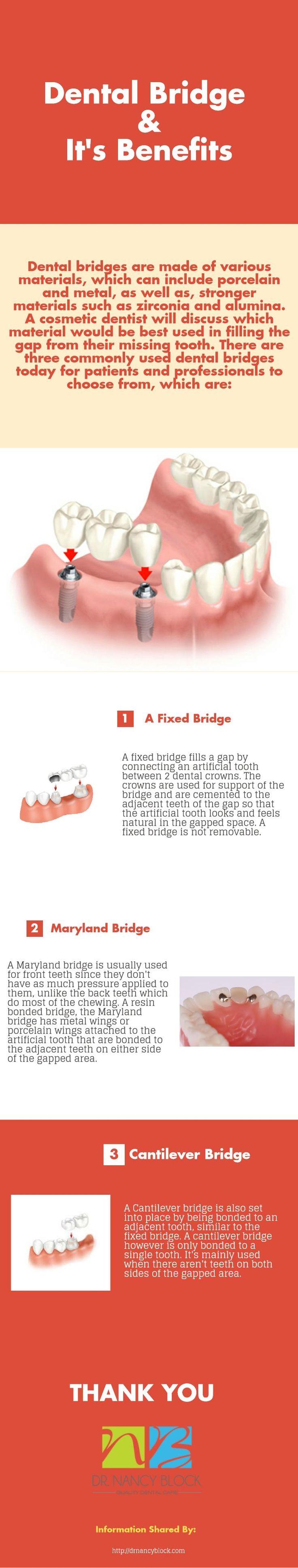 10 best Dental Bridges images on Pinterest | Dental services ...