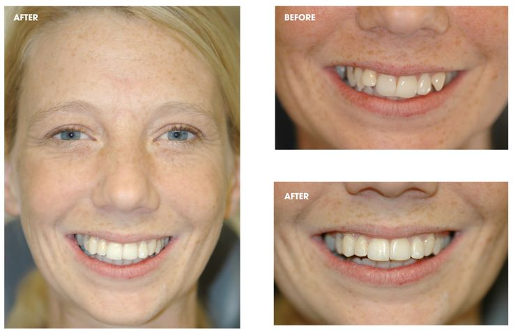 #orthodontics with #Clearbraces